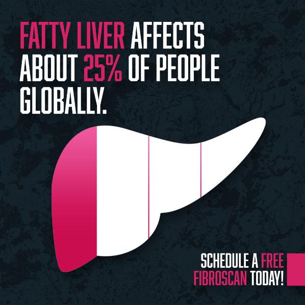 fatty liver fibroscan